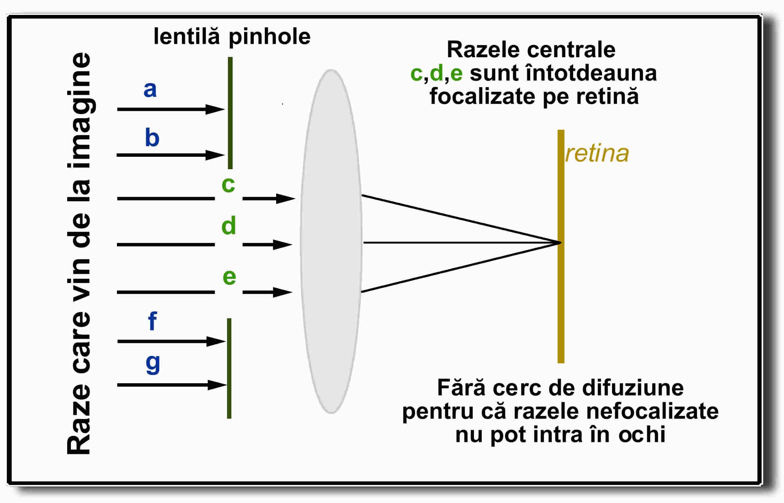 Corecția vederii cu laser: pro și contra